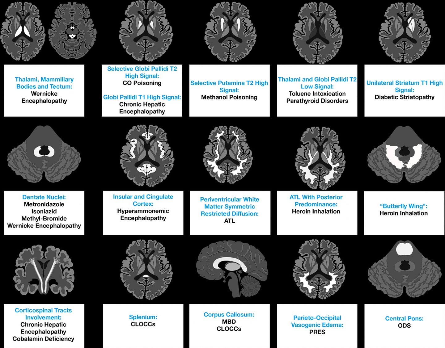 Imaging Patterns of Toxic and Metabolic Brain Disorders
