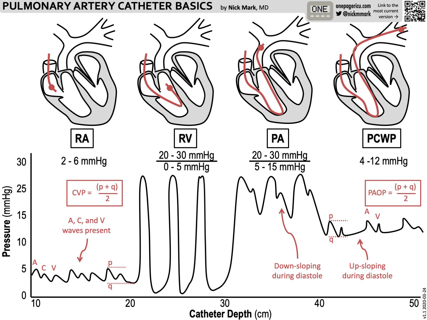 Pulmonary artery catheter basics