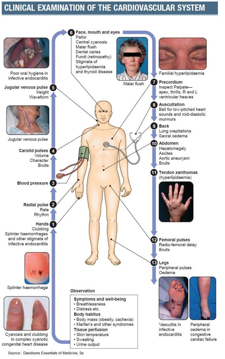 Clinical examination of cardiovascular system