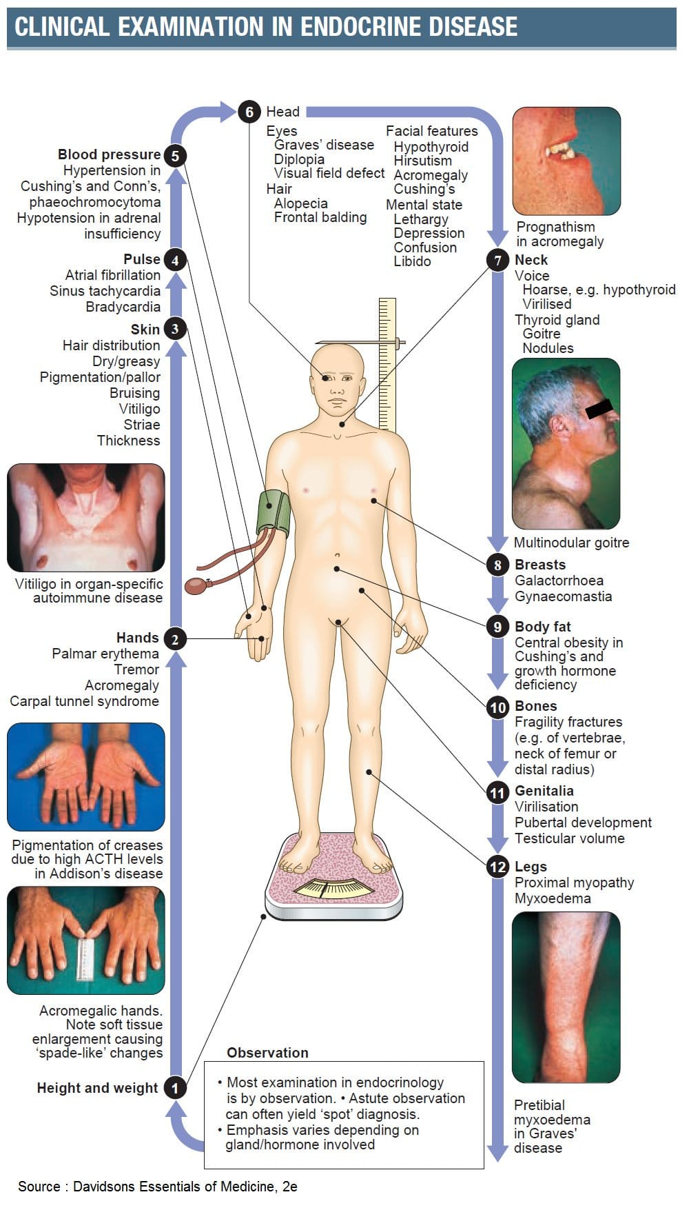 Clinical examination of endocrine system