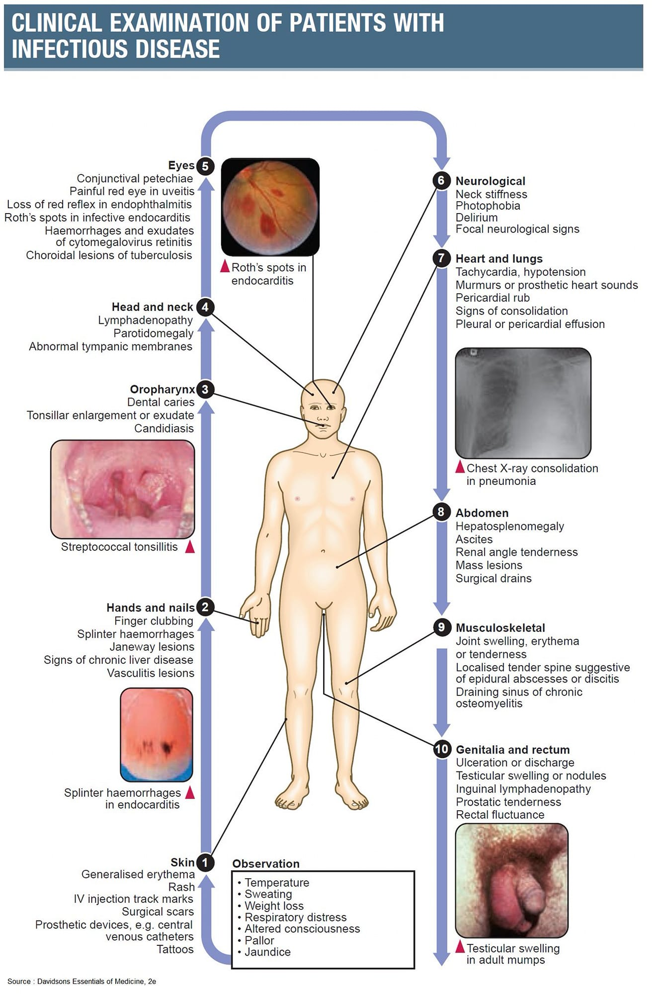 Clinical examination of patients with infectious disease