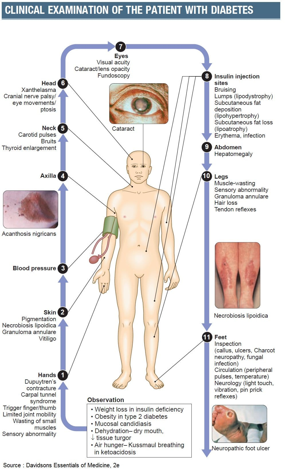 Clinical examination of patients with diabetes