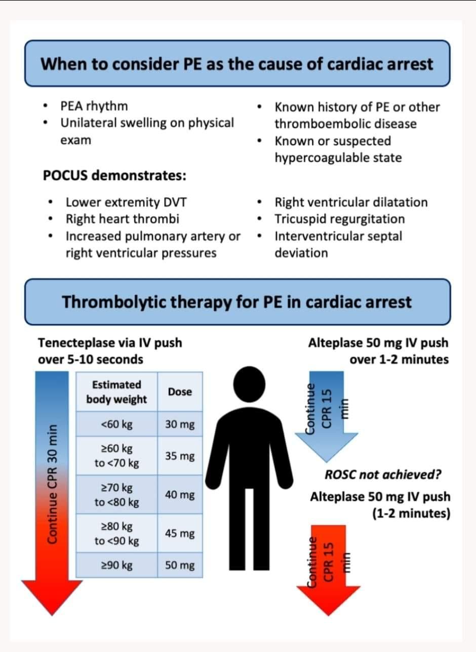 Thrombolysis in cardiac arrest