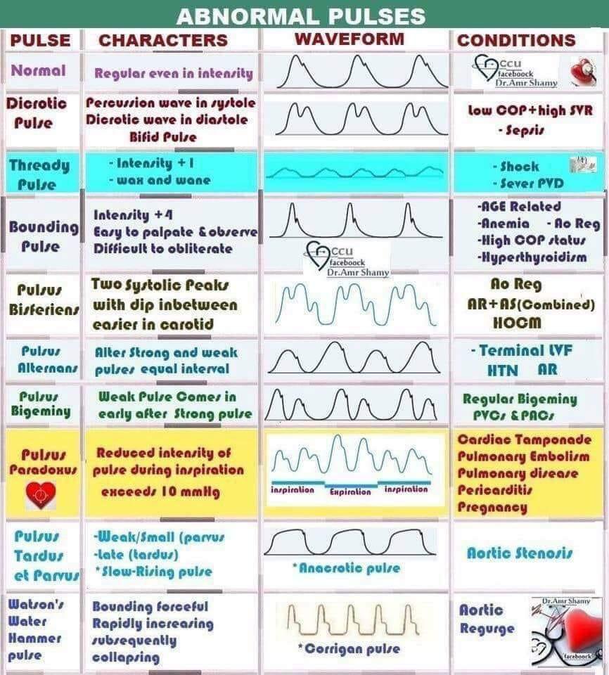 Abnormal pulses