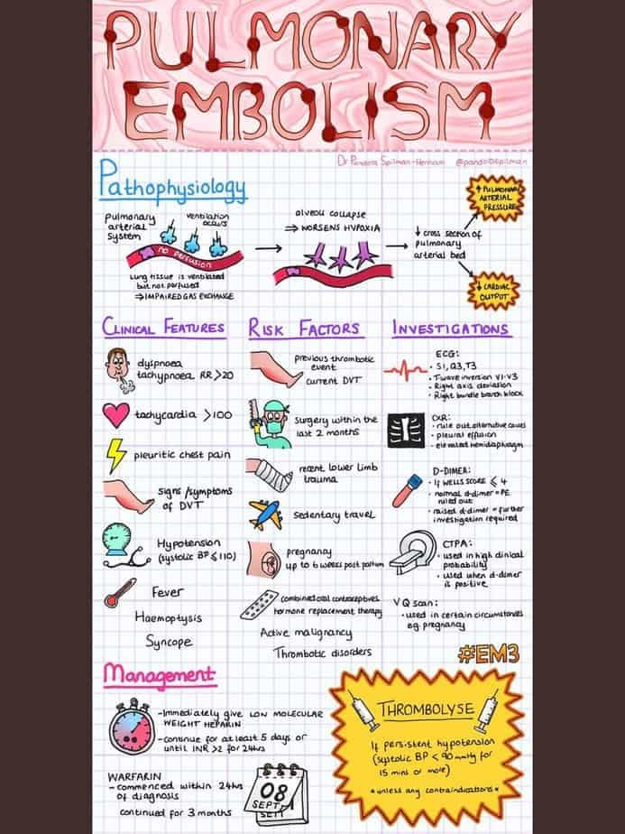 Pulmonary embolism overview