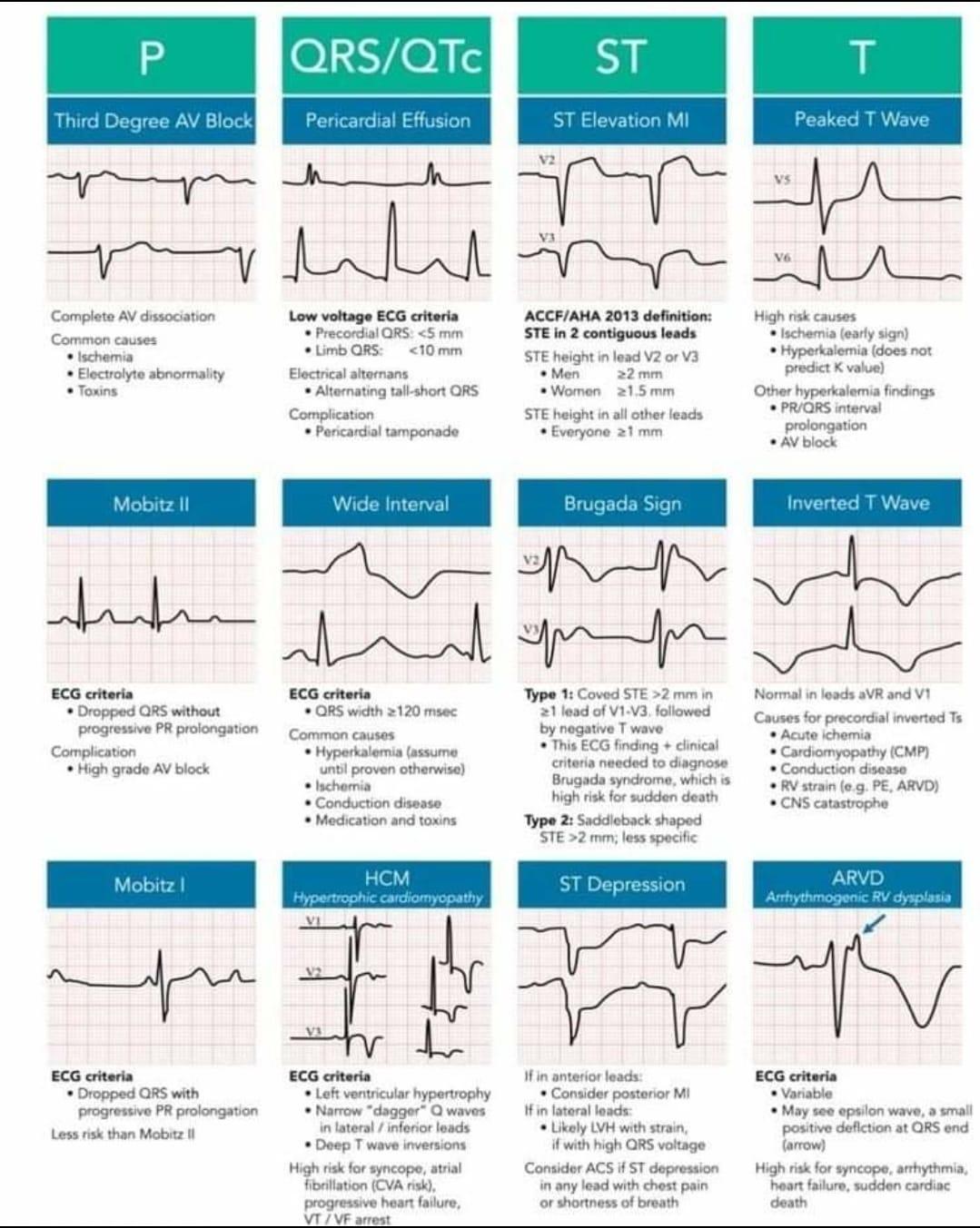 ECG wave abnormalities