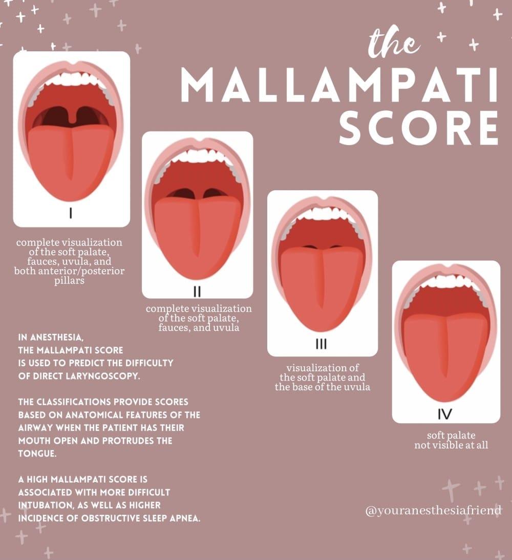Mallampati score