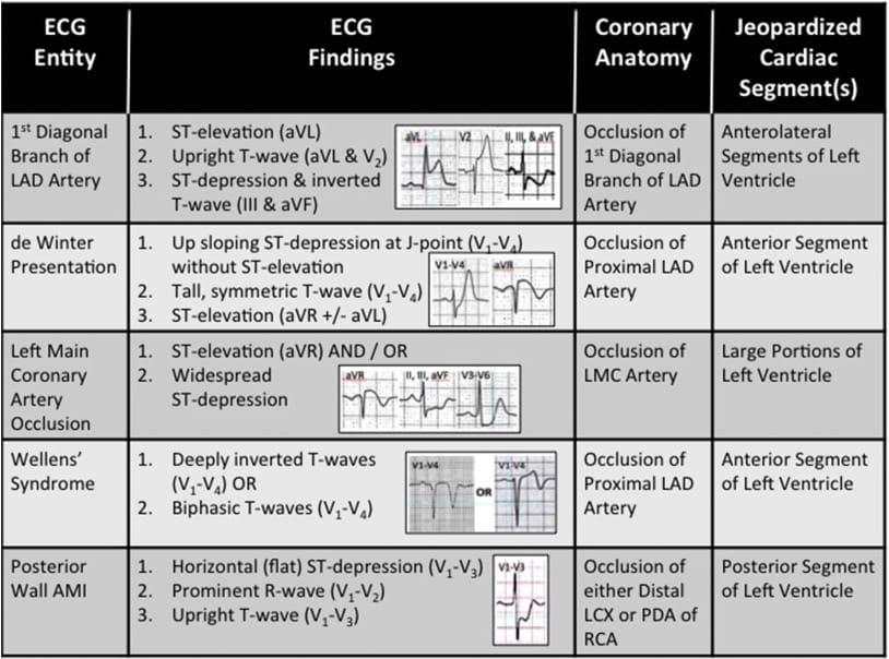 ECG risk patterns