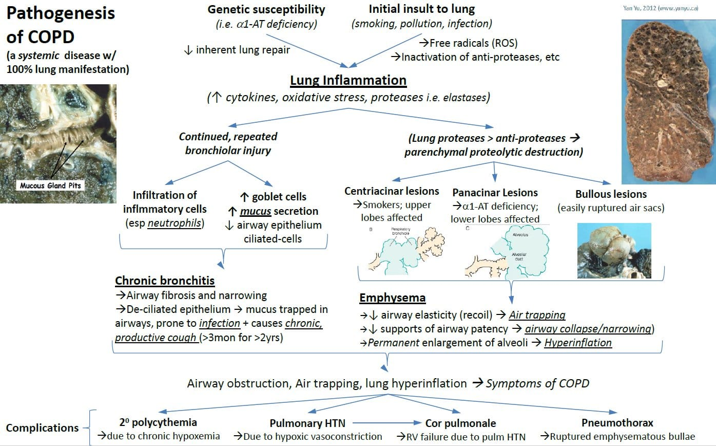 Pathogenesis of COPD