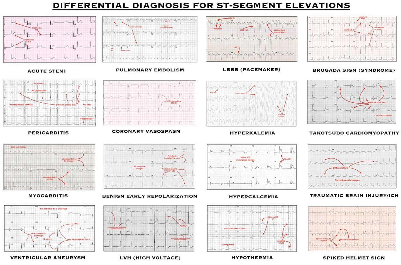 ST segment elevations