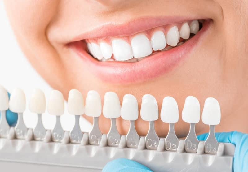 Dental bonding can restore your smile