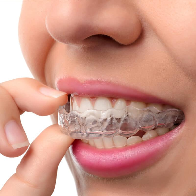 How to Protect Your Oral Health During Invisalign Treatment