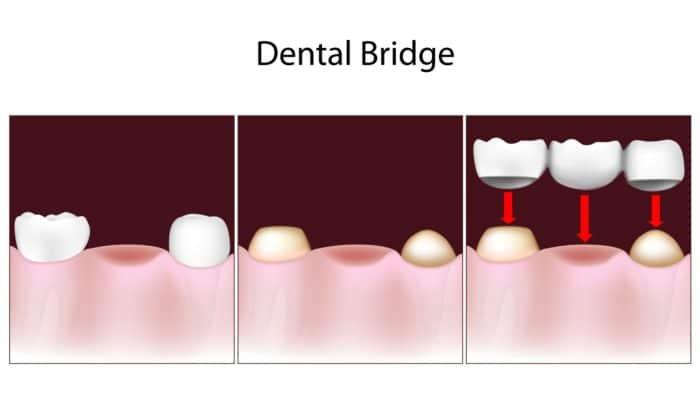 Dental bridge procedure at Premier Dental Central Ohio
