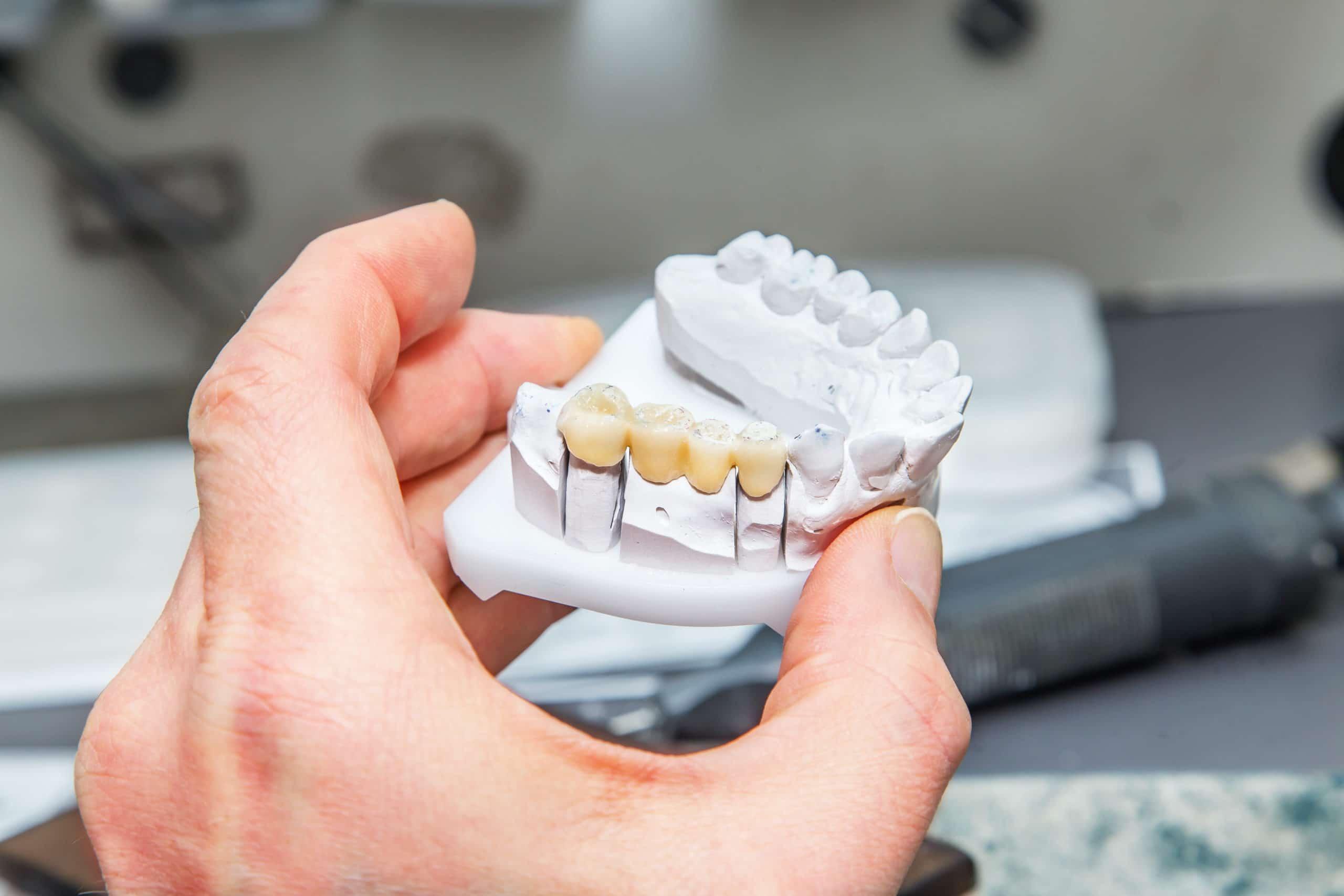 A dental bridge can help fill in the gaps.