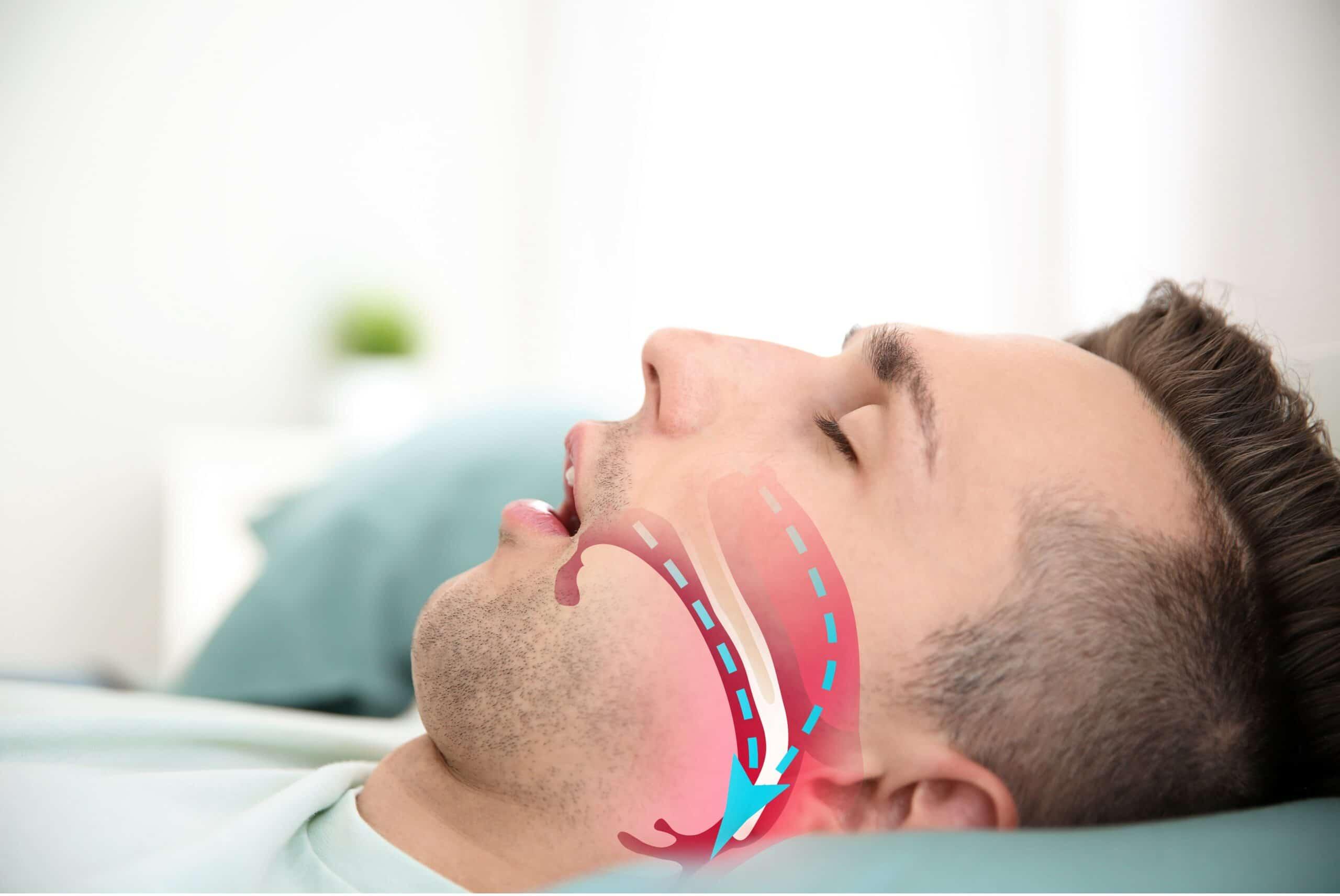 Your Dentist Can Help With Sleep Apnea?