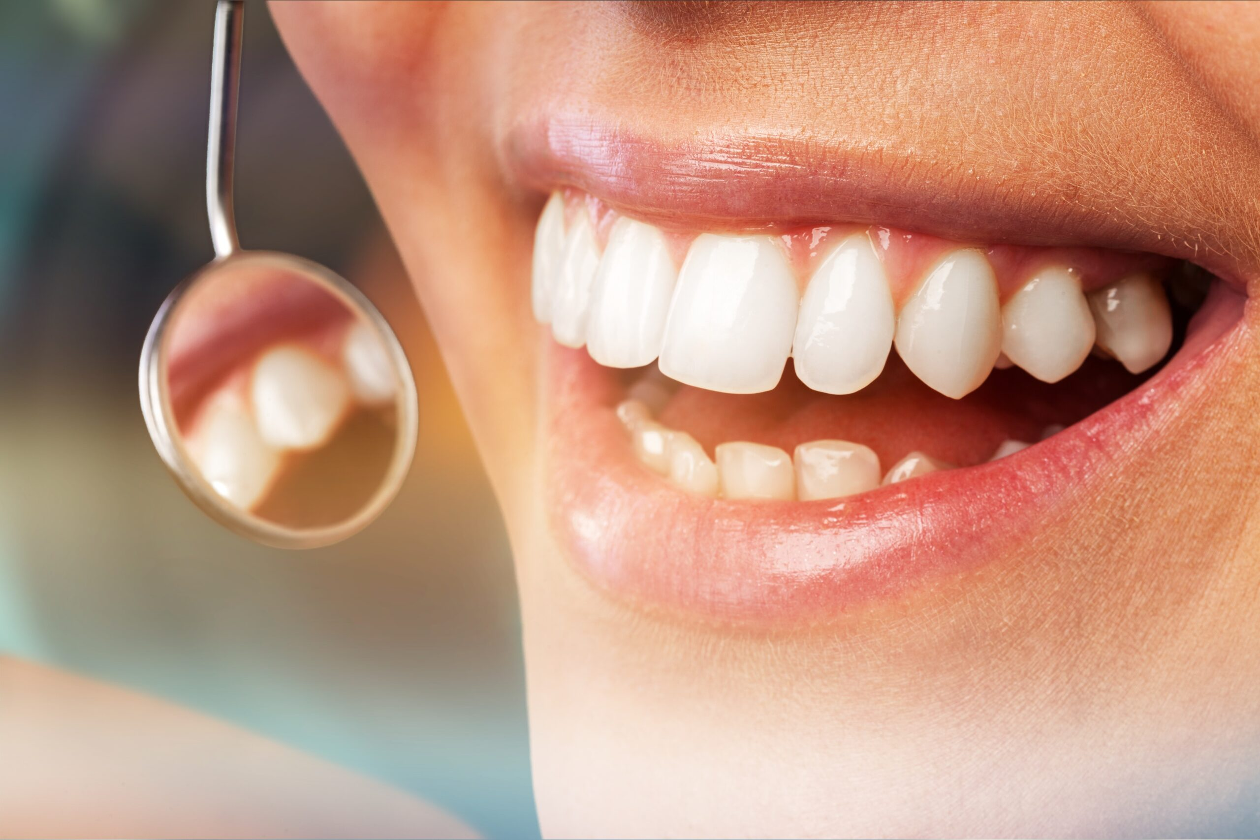 Fight Receding Gums Before its too late