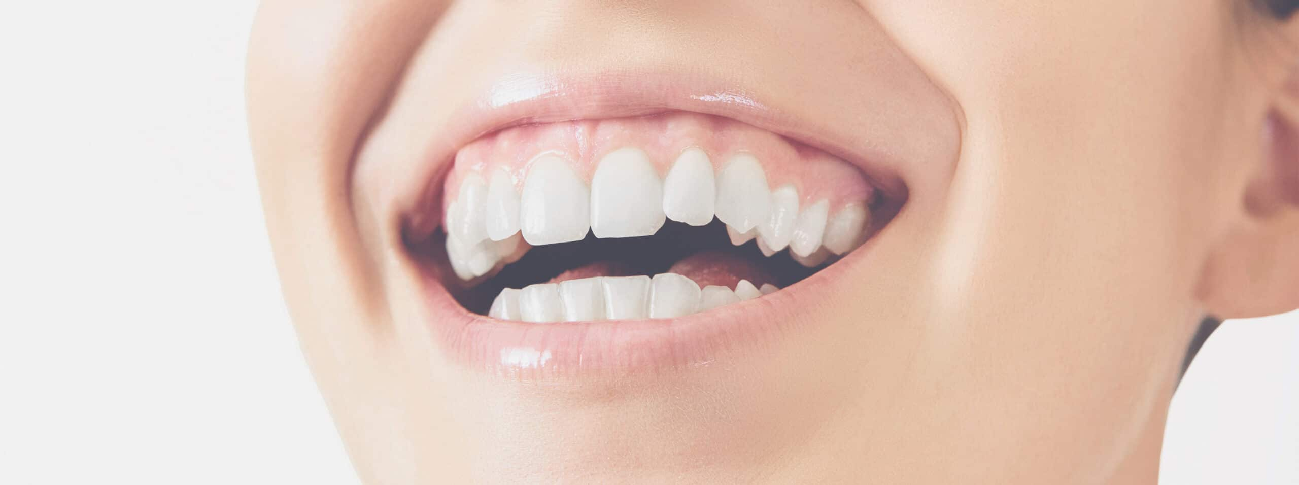 Protecting your teeth's enamel from erosion