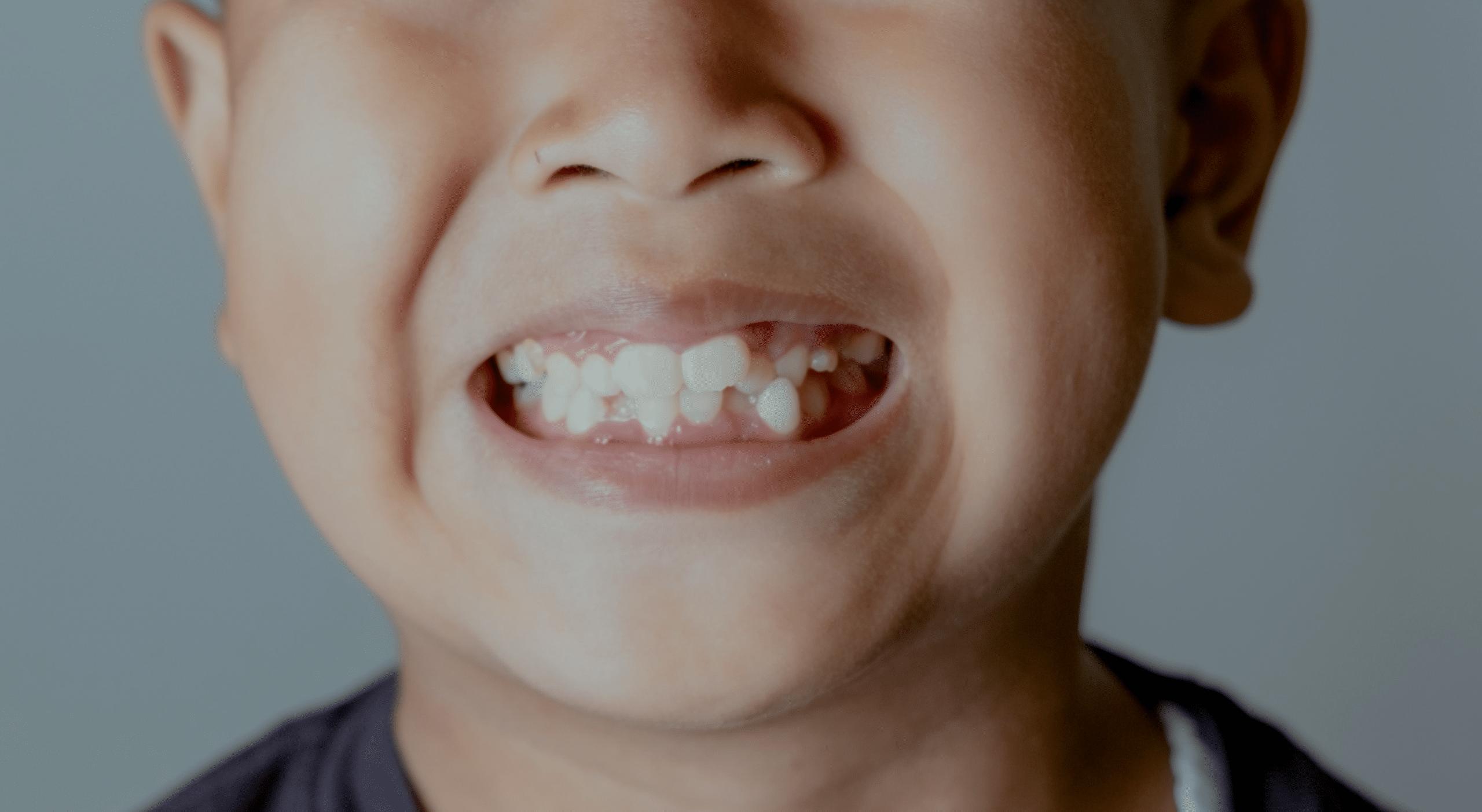 The Dental Risks of Having Crooked Teeth
