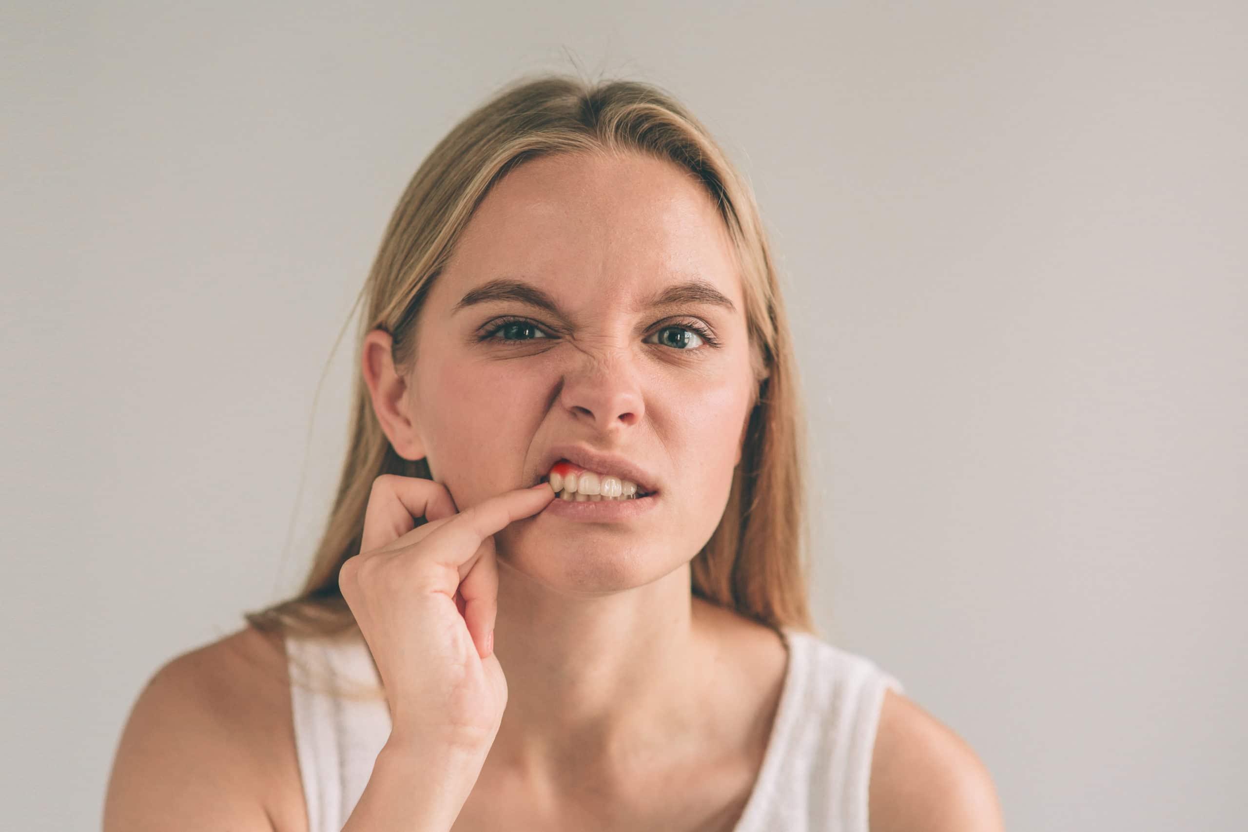 Dealing with bleeding gums