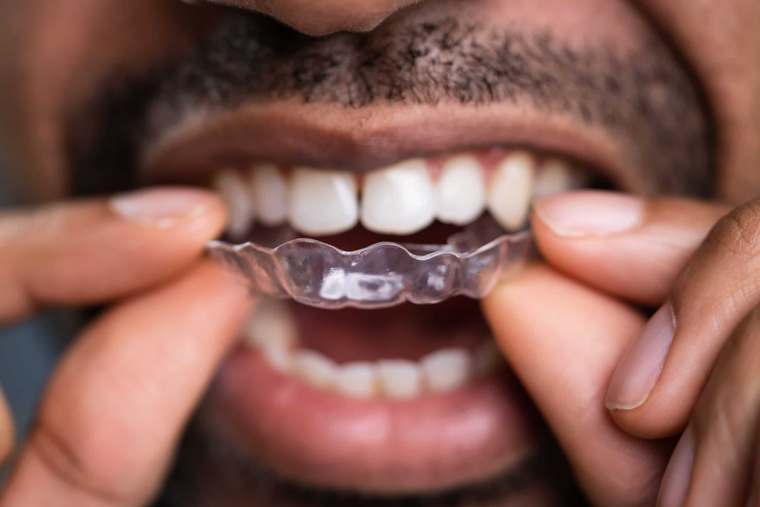 Maintaining Oral Health While Using Clear Aligners