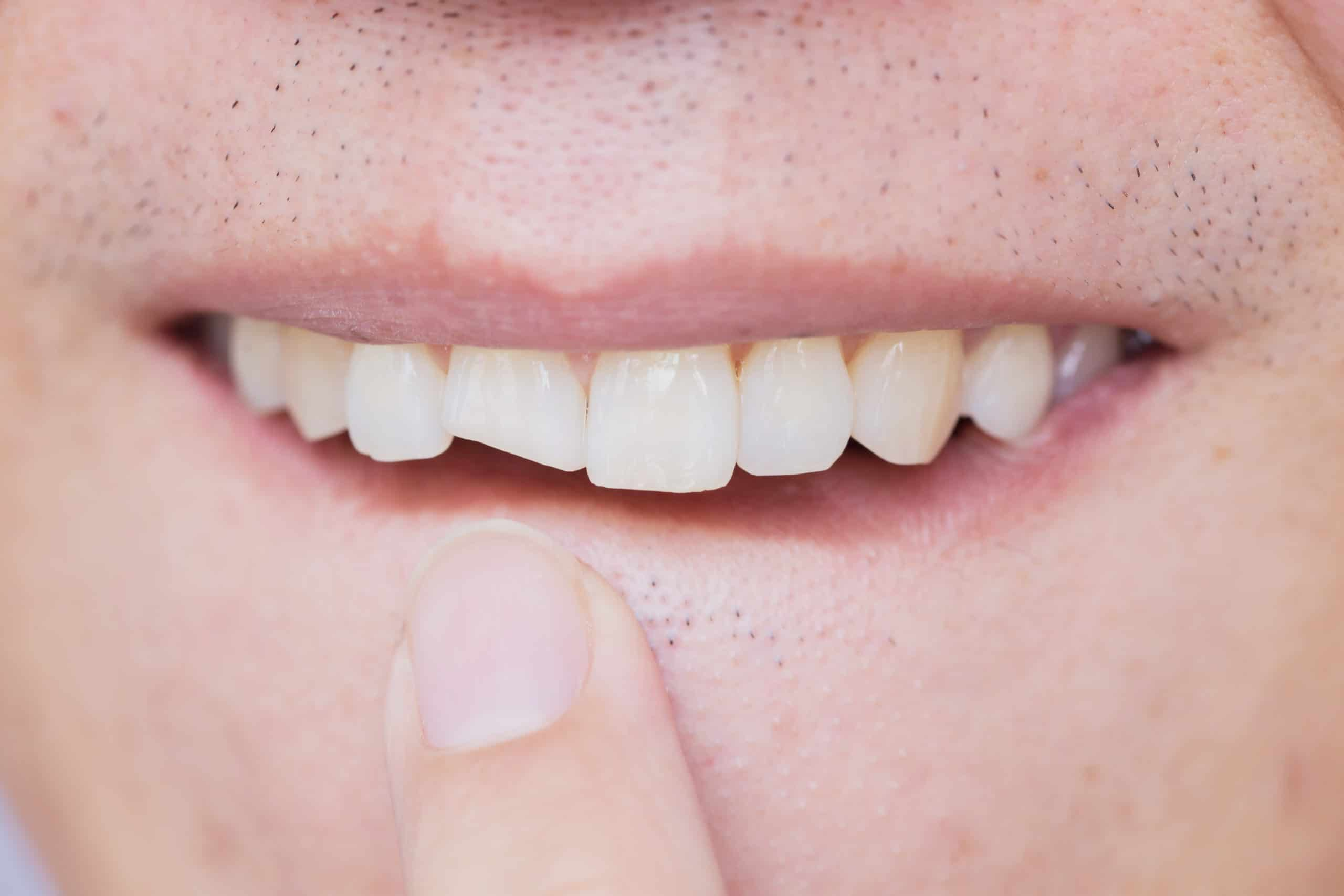 Dealing with Chipped Teeth
