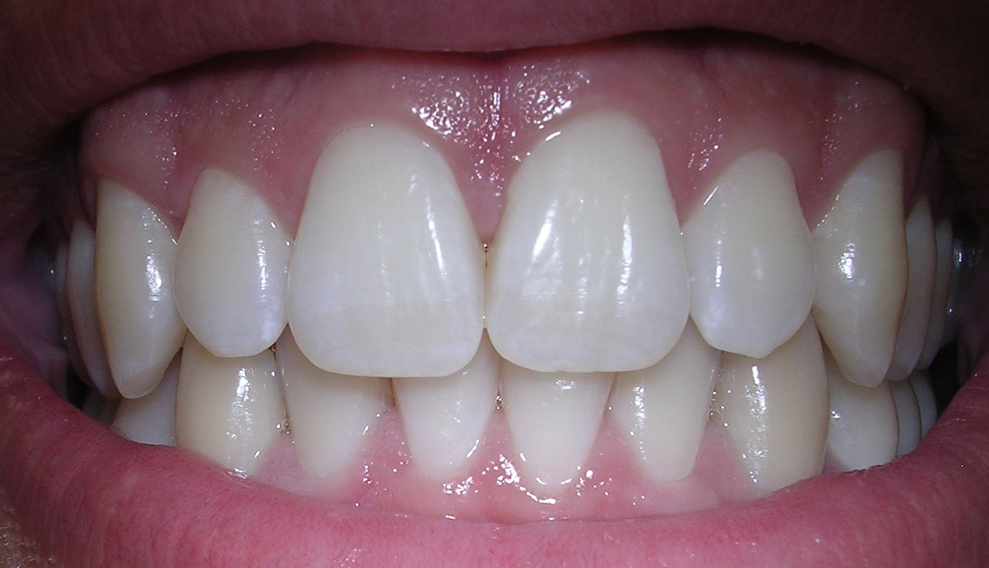 Avoid gum disease by keeping your mouth clean