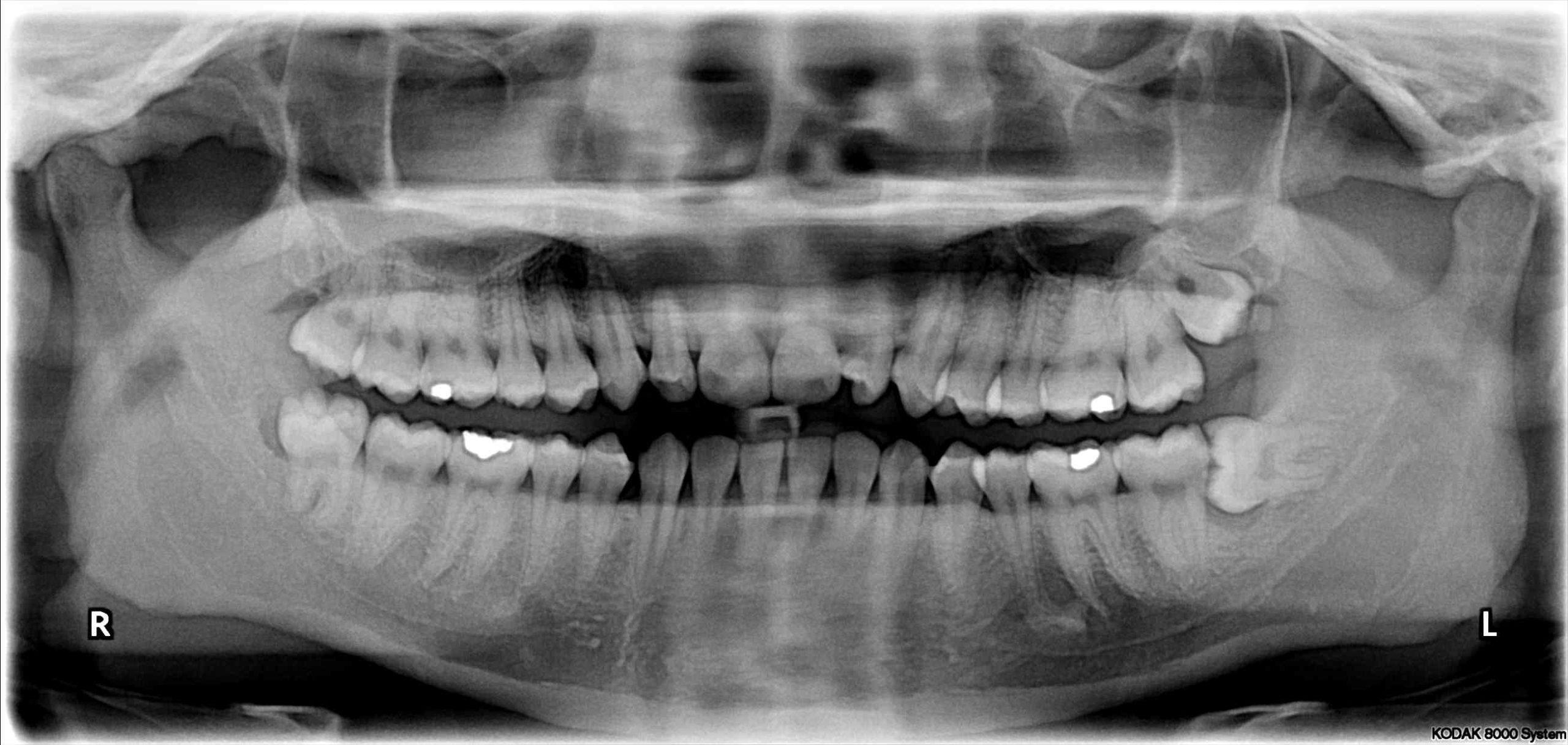 Wisdom Teeth: Can I Keep Mine?
