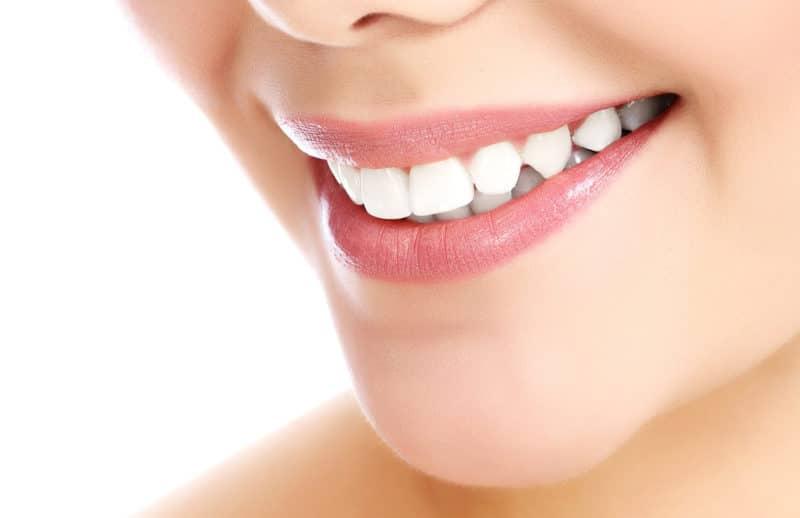 4 Important Considerations Before Bonding Teeth