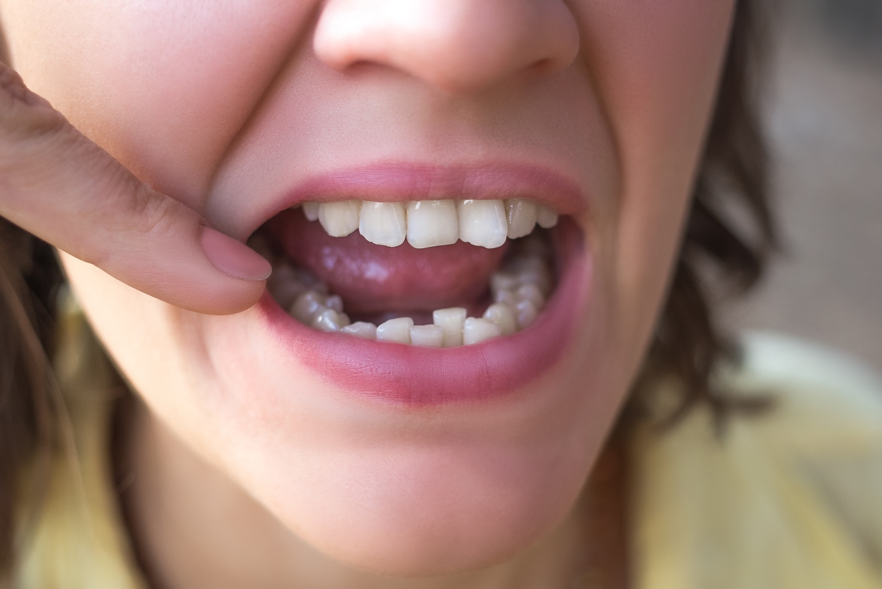 Dealing With Crooked Teeth