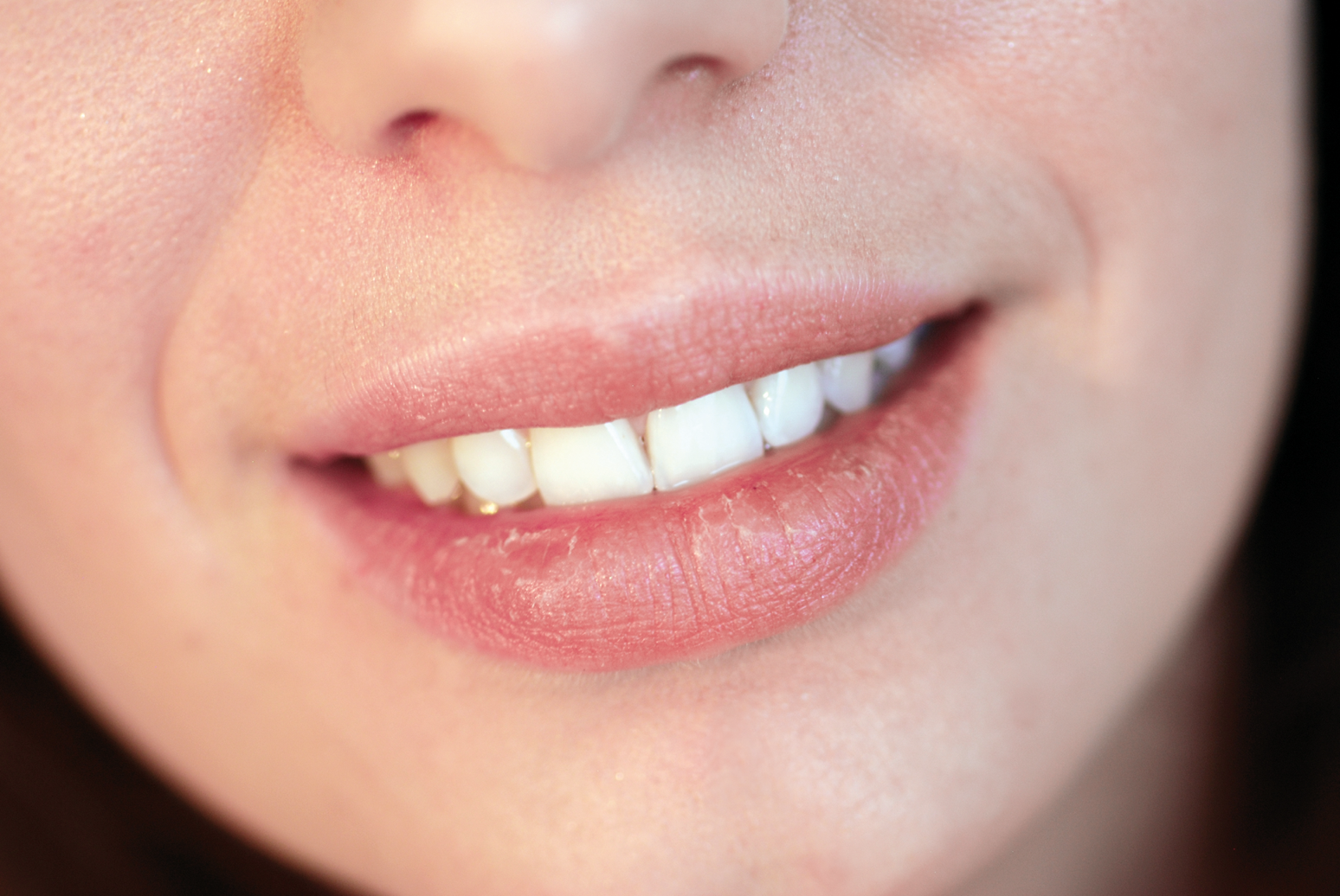 Dry Mouth can lead to bigger dental health issues