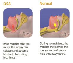 Comparison between normal airflow and sleep apnea airflow in Littleton, CO
