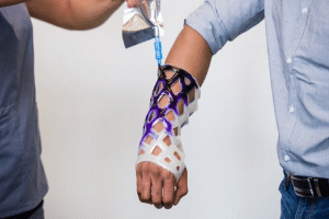 Revolutionary New Arm Cast is Waterproof, Breathable, and Itch-Free