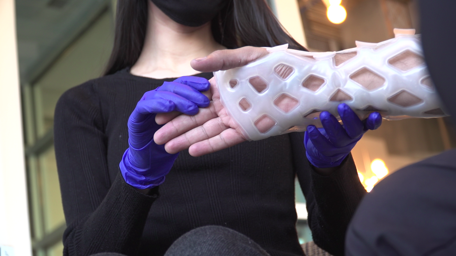 Innovative waterproof casts bring bone-setting into the future
