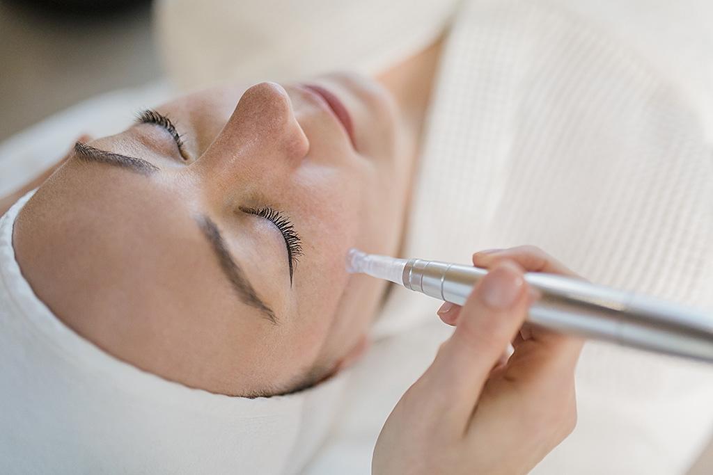 Microneedling und Ultraschall Behandlung Kosmetikstudio Bodman Ludwigshafen