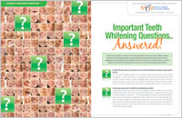 Questions and answers about teeth whitening