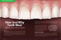 Why do your teeth wear out so fast?