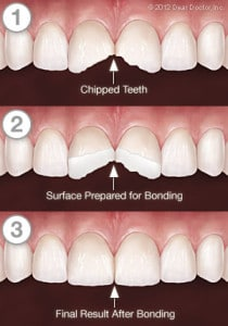 Tooth bonding services