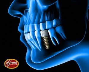Grand Family Dentistry offers implant dentisry