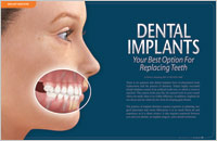 What are Implants? - Dear Doctor Magazine