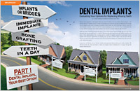 Evaluating Your Implant Options - Dear Doctor Magazine