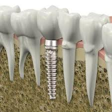 Root canal therapy and endodontics in Baton Rouge & Mandeville