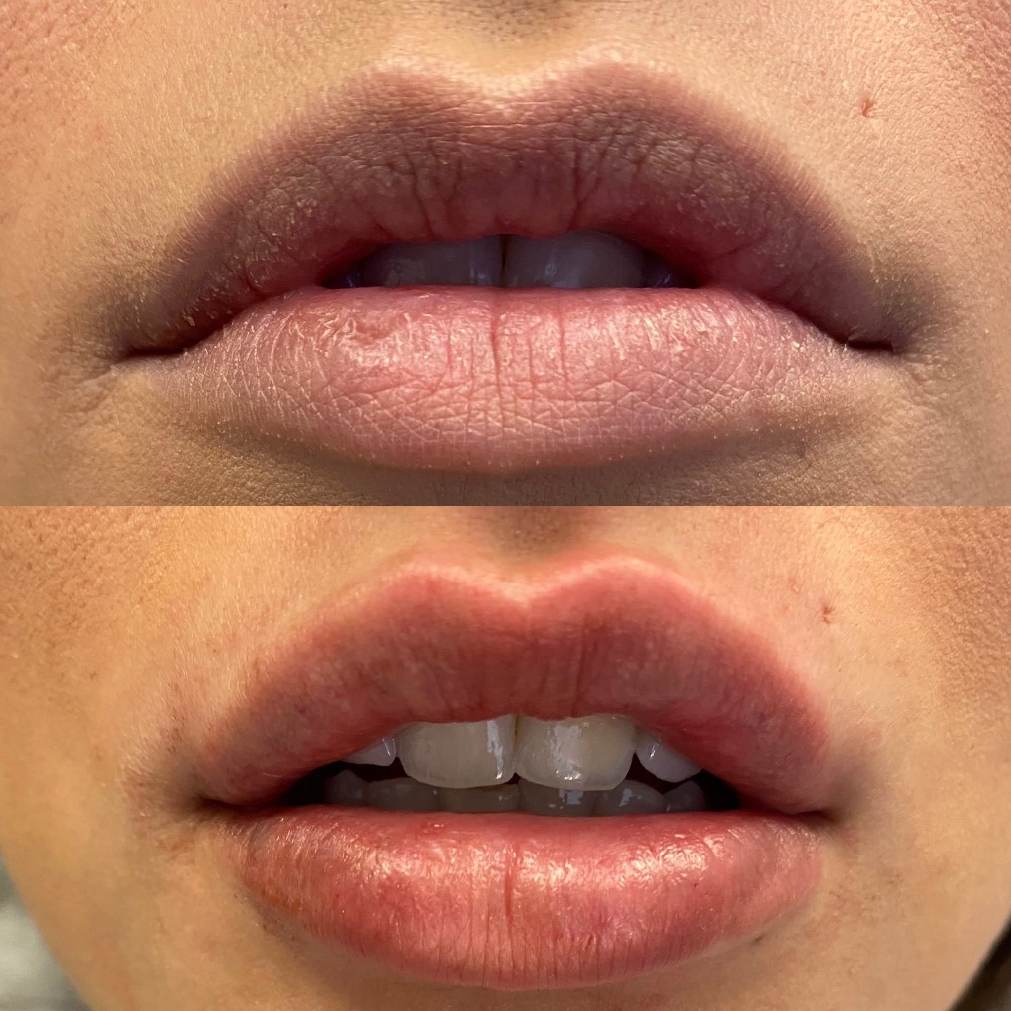 See the difference lip filler can make!