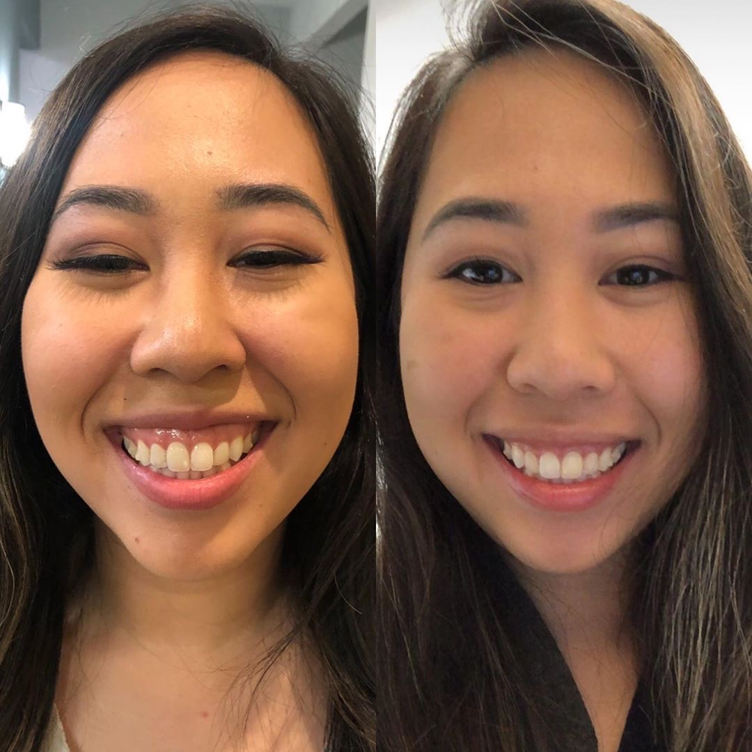 Injectible Lip Fillers
