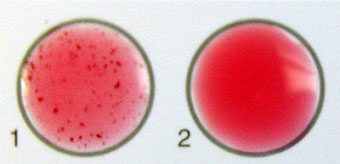 Staph procedure image, showing reactive and nonreactive sample.