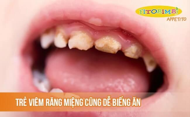 Trẻ viêm răng miệng cũng dễ gây biếng ăn