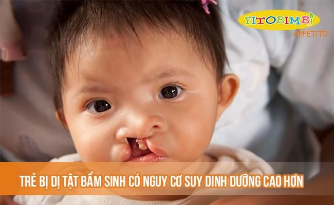 Trẻ bị dị tật bẩm sinh có nguy cơ suy dinh dưỡng cao hơn
