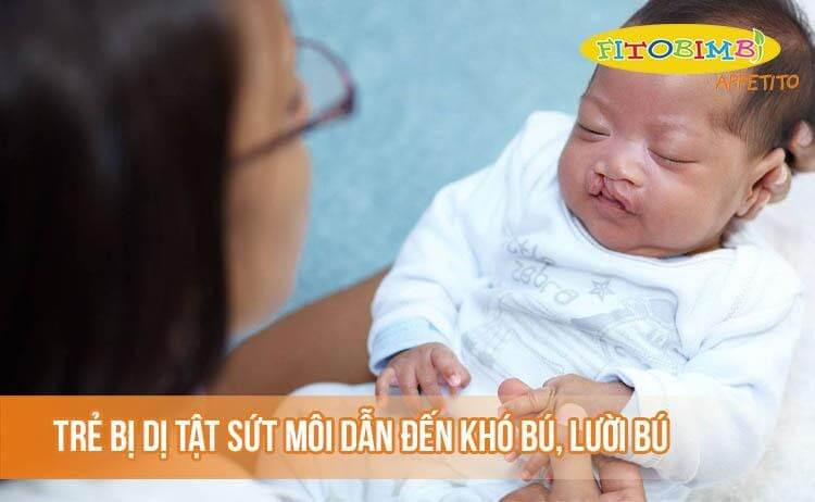 Trẻ bị dị tật sứt môi dẫn đến khó bú, lười bú