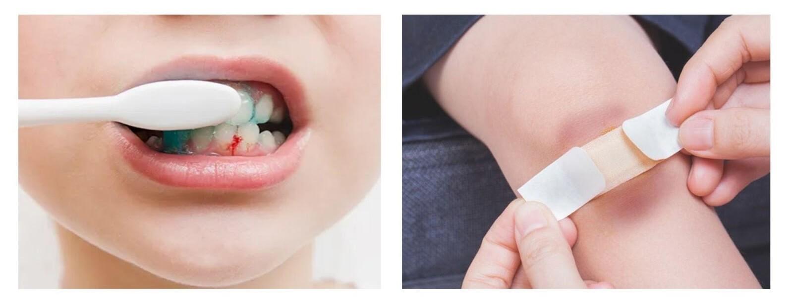 Trẻ thiếu vitamin C thường xuyên bầm tím tay chân và chảy máu chân răng