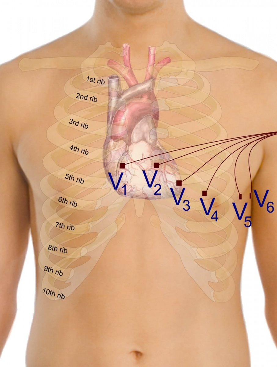 Precordial leads in ECG
