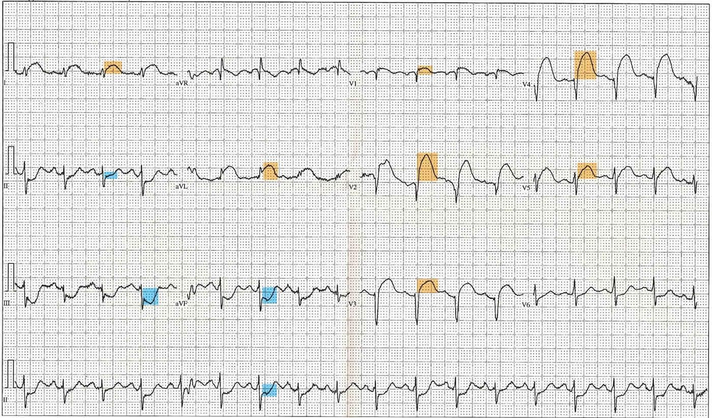 12 Lead ECG showing ST Elevation (orange)